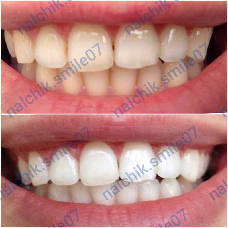 Nalchik.Smile07,Отбеливание зубов ,Нальчик
