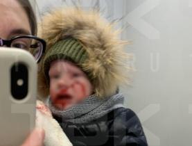 В Красноярске уличная собака покусала лицо маленькому ребенку
