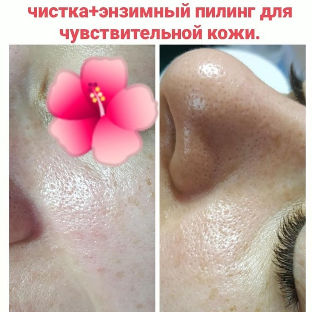 🌸Косметолог Beauty spaterapia - Все виды услуг по эстетической косметологии