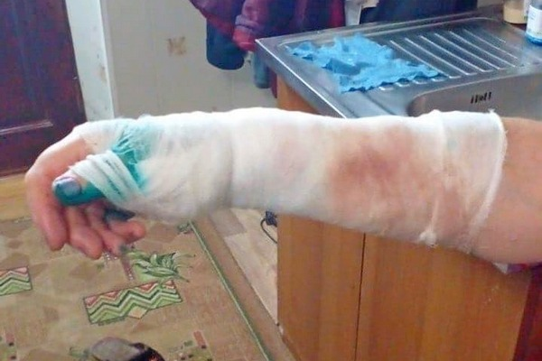 В Азове пожилую женщину искусала бродячая собака